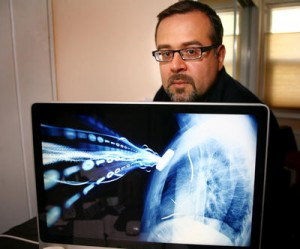 Hugo Campos with an image of his x-ray that he altered for a talk he gave